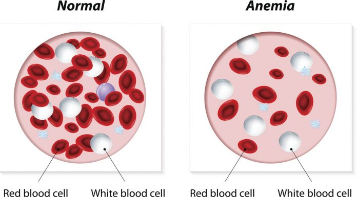 Anemia - Iran Bio Medical