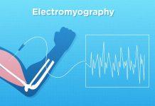 Electromyography - Iran Bio Medical