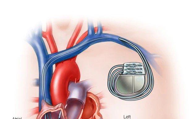 Heart Peacemaker - Iran Bio Medical