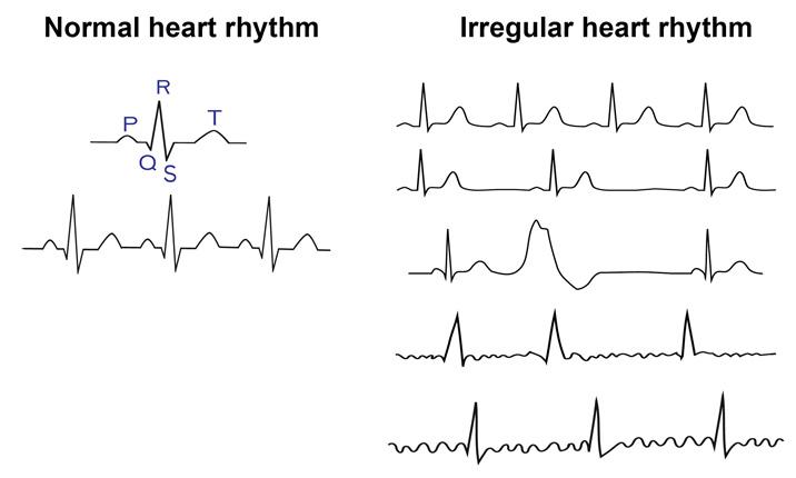 Heart rhythm - Iran Bio Medical