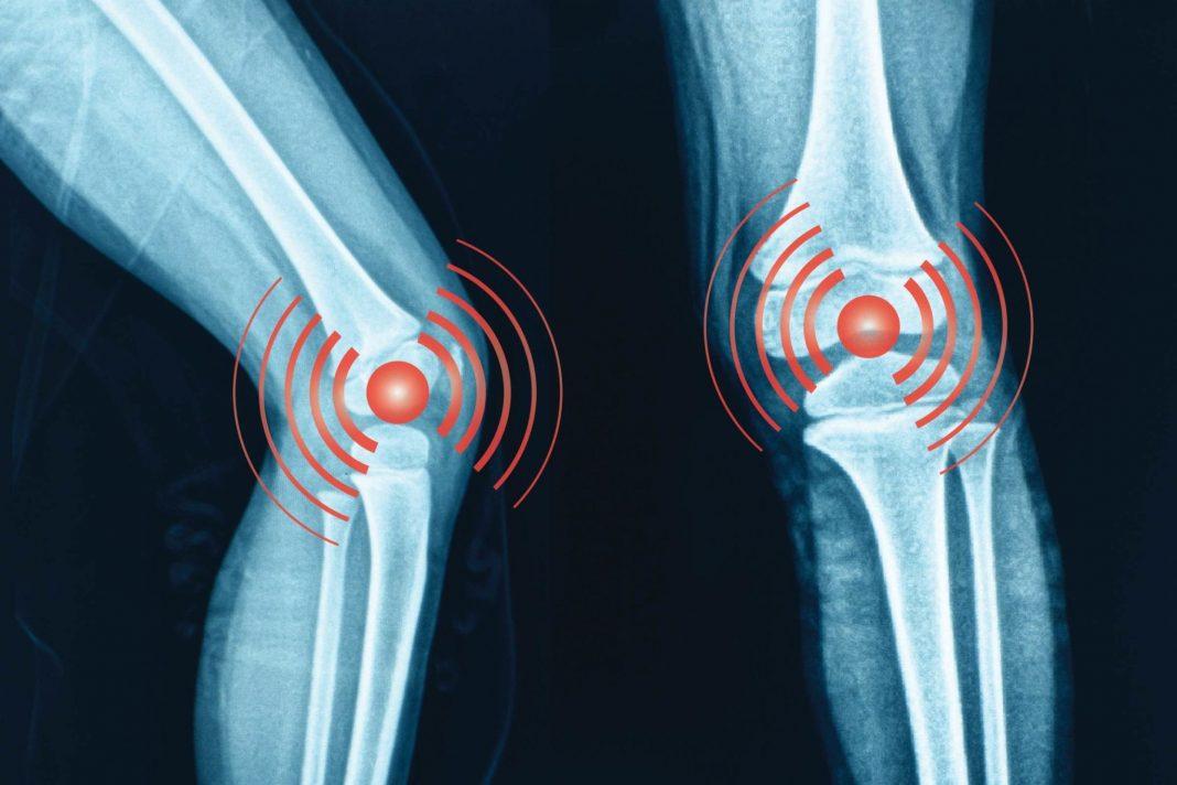 Osteoarthritis-Mortality - Iran Bio Medical
