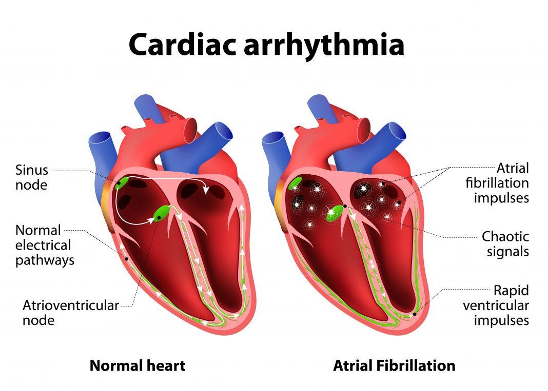 cardiac arrythmia - Iran Bio Medical