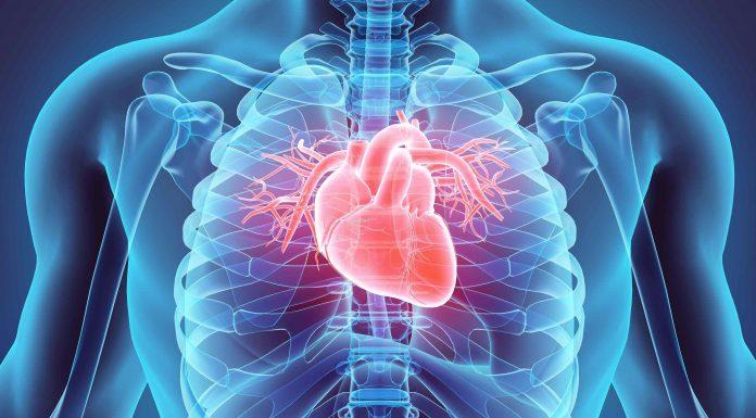 CVD Cardiovascular disease - Iranbiomedical