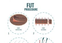 FUT Procedure - Eyebrow transplant iranbiomedical