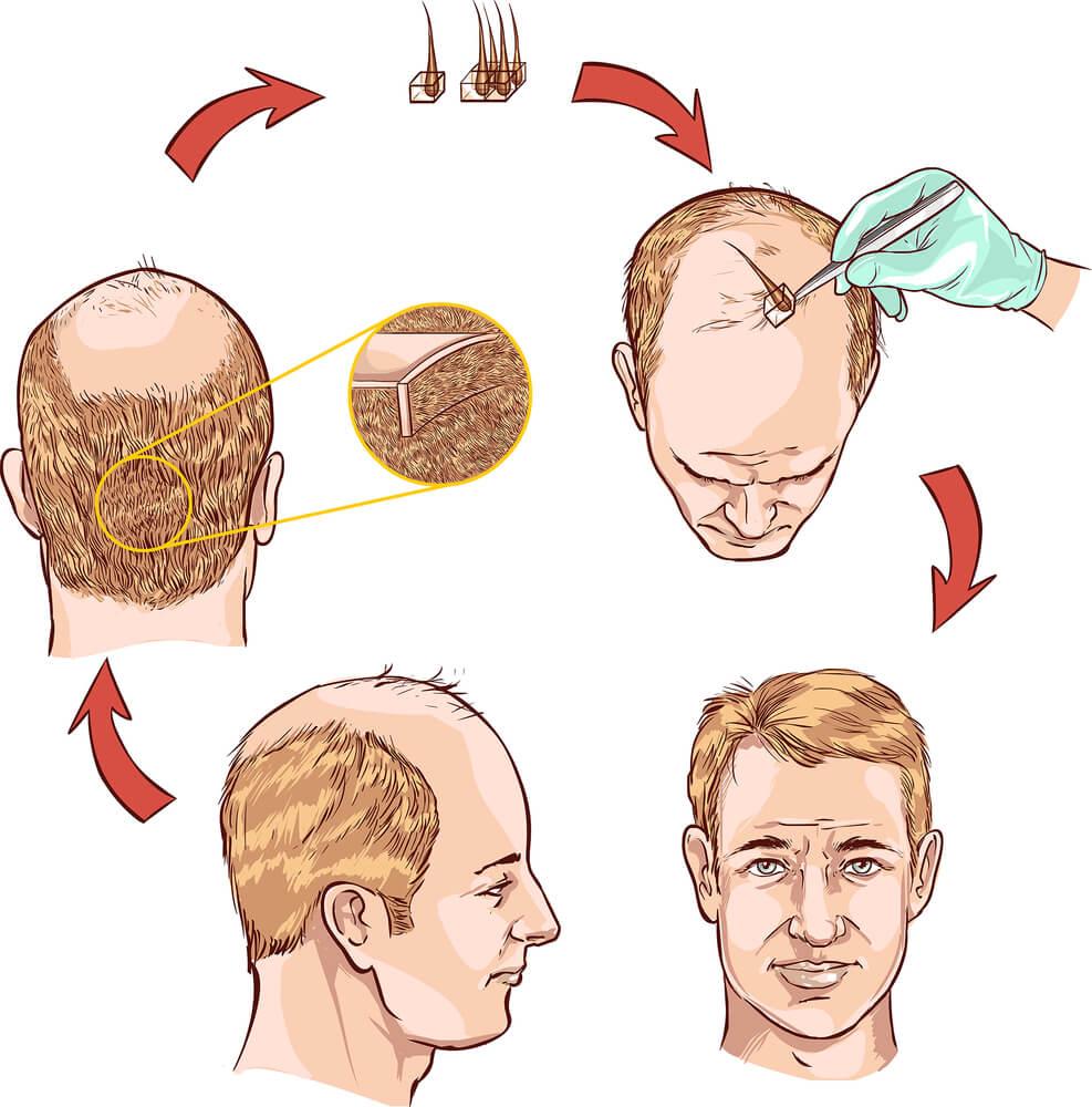 Hair-Transplantation Iran Bio Medical