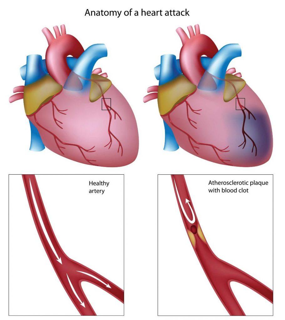 Heart Attack - Iran Bio Medical