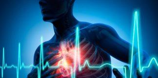 Myocardial infarction - Iran Bio Medical