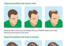 androgenetic hair loss iran bio medical