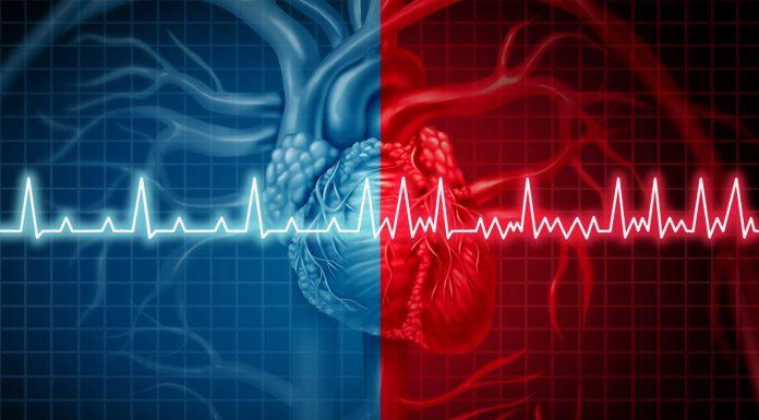 cardiac arrhythmias - iran bio medical