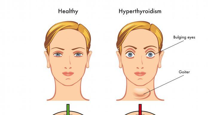 hyperthyroidism - iran bio medical